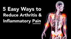 5 Easy Ways to Reduce Arthritis And Inflammatory Pain