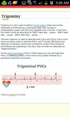 ECG Trigeminy PVC heart rhythm