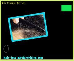Best Treatment Hair Loss 173306 - Hair Loss Cure!
