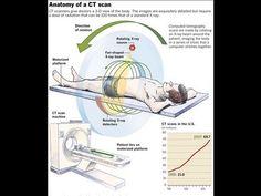 How CT Scan Machine Works - YouTube