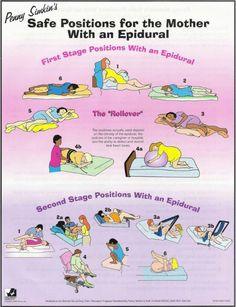 Penny Simkin Safe Positions for the Mother with an Epidural - Childbirth Graphics -- good resource to study. Even if you have an epidural, changing positions is important for birth! Volleyball Skills, Volleyball Training, Volleyball Workouts, Volleyball Videos, Volleyball Referee, Olympic Volleyball, Coaching Volleyball, Doula Training, Doula Business