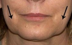 Face Massage: Face Exercises For Stemming And Tautening Second Chin