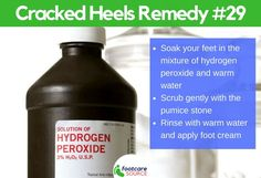 Cracked feet are unsightly and painful. People suffering from cracked feet or heel fissures usually hide their feet in stuffy shoes. Aside from the physical embarrassment of the condition, most people who have dry feet Dry Cracked Heels, Cracked Feet, Cracked Heel Remedies, Natural Moisturizer, Neem Oil, Foot Cream, Tea Tree Oil, Feet Care
