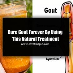 gout hip quarters gout medication and kidney function high purine foods mayo clinic