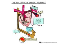 Pulmonary embolism. Check out Nurses Rock! On Facebook www.facebook.com/1nursesrock