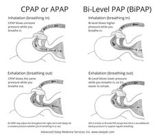 It's important to know the basic about the different types of PAP (positive airway pressure) devices that are used to treat sleep apnea. Whether you're newly diagnosed with sleep apnea or a more seasoned user or healthcare provider, this post outlines the Cardiac Nursing, Nursing Mnemonics, Nursing Information, Critical Care Nursing, Nursing School Notes, Nursing Schools, Sleep Medicine, Respiratory Therapy, Sleep Apnea