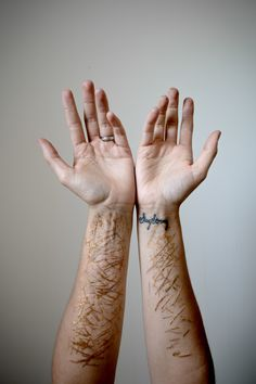kintsugi scar - Google Search                                                                                                                                                     More