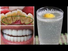 Natural Teeth Whitening Remedies This Mouthwash Removes Plaque From Teeth In 2 Minutes - How To Remove Dental Plaque Homemade Mouthwash, Plaque Removal, Best Teeth Whitening, Bad Breath, Oral Hygiene, Oral Health, Gum Health, Health Advice, Natural Remedies