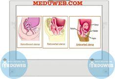 Uterine retroversion and retroflexion