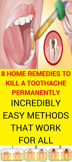 Pain Remedies 8 Homemade Remedies to Kill a Toothache Permanently: So Easy Methods That Work For All People – Page 5 – The World of Health Natural Add Remedies, Natural Teething Remedies, Natural Headache Remedies, Natural Treatments, Herbal Remedies, Natural Healing, Remedies For Tooth Ache, Oral Health, Home Remedies