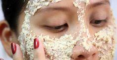 Si vous avez du mal à prendre soin de votre peau grasse, voici une astuce naturelle simple et efficace pour l'assainir et la protéger.