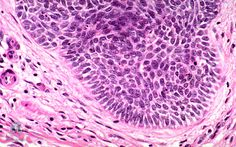 Skin Under the Microscope: Basal Cell Carcinoma of skin (Image)   University of Melbourne eshowcase