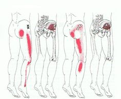 If you hurt all over and feel worn out, you may have stress on muscle fibers what leads to the formation of Trigger Points in muscles innervated by sciatic nerve. Trigger points may also manifest a…