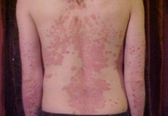 Line of Ayurvedic treatment includes oral administration of medicated ghee, Vamana(Emesis- purgation can also be carried according to the condition) and various single drugs which are quite beneficial in psoriasis are-