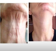 Fight the sign of aging with a revolutionary new product. The Rodan and Fields Amp MD system provides amazing results. Developed by the same Stanford trained doctors that created Pro-Activ, this skin care line is changing the anti-aging market. Get in on it today!! https://giddyup.myrandf.com