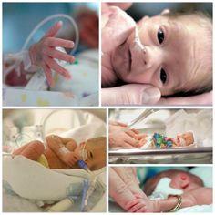Tratamiento en bebés prematuros - Fisioterapia bebés prematuros