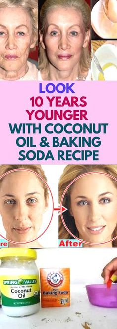Today we are going to present a recipe for a natural remedy which cleanses the pores, eliminates acne and blackheads, reduces wrinkles and tightens the sagging facial skin! Believe it or not, this natural miracle is a combination of coconut oil and baking Beauty Care, Beauty Skin, Health And Beauty, Beauty Tips, Beauty Hacks, Star Beauty, Healthy Beauty, Diy Beauty, Healthy Hair