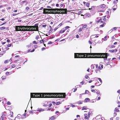 Alveoli in the lungs have: Type I pneumocytes--- gas diffusion Type II pneumocytes --- surfactant production Macrophages --- dust cells Capillary endothelial cells