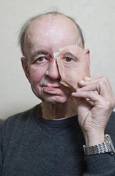 JOJO POST PRINT: How a printer gave a man his face - and his life - back? Eric Moger has a partial prosthetic face after suffering from face cancer. 3d Printing Technology, Medical Technology, Cool Technology, Welding Technology, Impression 3d, Prosthetic Face, 3d Printed Objects, Latest Design Trends, 3d Prints