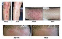 Shape Magazine – Pielęgnacja skóry i sposoby na zmarszczki