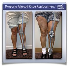 Properly aligned knee replacement will correct a knock knee deformity