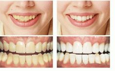 Teeth whitening involves bleaching your teeth to make them lighter. Teeth whitening can't make your teeth brilliant white, but it can lighten the existing color..!!!!!!!