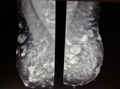 Multiple well rounded soft tissue lesions project over both breasts. Many can be seen to be external to the breast, on the skin. Additionally in the left breast a stellate density with architectural distortion is present. Neurofibromatosis Type 1, Breast Image, Nuclear Medicine, Breast Cancer Support, Study Guides, Medical, Surgery, Nursing, Health