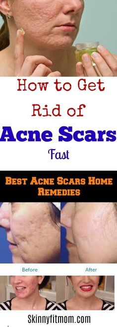 How To Get Rid Of Blackhead & Acne Fast