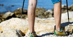 #VaricoseVeins can be associated with progressive disease that can lead to other symptoms