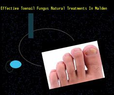 Effective toenail fungus natural treatments in malden - Nail Fungus Remedy. You have nothing to lose! Visit Site Now