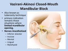 Image result for vazirani akinosi nerve block French Apartment, Oral Surgery, Study Notes, Image, Teeth