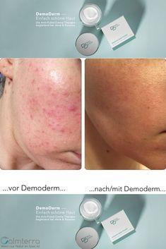 Zahlreiche Menschen haben Hautprobleme, die sie Tag für Tag versuchen in den Griff zu bekommen. Oft haben sie schon Vieles ausprobiert gegen Rosacea / Couperose, Hautunreinheiten, Akne oder Spätakne. Aber nie haben sie etwas gefunden, das wirklich hilft. Der tägliche Blick in den Spiegel ist für viele Betroffene eine Qual. Sie möchten sich am liebsten zu Hause verkriechen. Austria, Pimple, Nursing Care, People, Summer