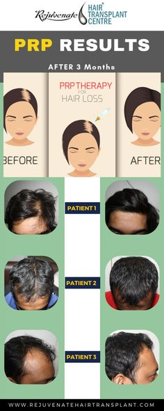PRP therapy is the most suitable and effective treatment for hair loss treatment. By taking some month of PRP session you get recover your damaged hairs. Prp For Hair Loss, Why Hair Loss, Biotin For Hair Loss, Hair Loss Shampoo, Hair Loss Women, Prevent Hair Loss, Biotin Hair, Excessive Hair Fall, Platelet Rich Plasma Therapy