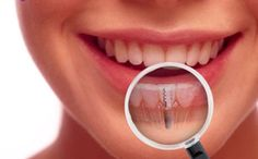 One of the most recommended treatments for missing teeth is dental implants. http://www.implantsolutionstoday.com | 386-837-1236