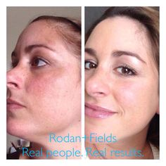 Some times you don't know how damaged or dull your skin is, until you compare a before/after picture. Rodan+Fields will show you the light and reveal your truest beauty!   https://sjanssen.myrandf.com