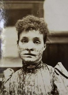 Miss Clarke before treatment. (Victorian skin ailment at Wakefield Asylum) Mental Asylum, Insane Asylum, Haunted Asylums, Psychiatric Hospital, Wakefield, Science And Nature, The Cure, The Past, Victorian