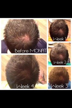 Before and after Monat Men's 2 in 1 shampoo and treatment.   Clinically proven to regrow hair.  Go to MyMonat.com/marisak for the opportunity of a lifetime to change the future of your family while working from home.   Also on Instagram at PonytailAddiction.