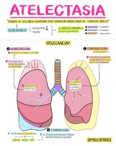Medicine Notes, Medicine Student, Internal Medicine, Medical Students, Medical School, Medical Surgical Nursing, College Nursing, Psychology Studies, Medical Anatomy
