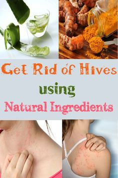 Get Rid of Hives using Natural Ingredients