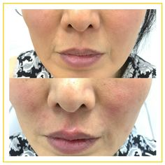 Dr. Targett softened this client's nasolabial fold using premium filler to create a more refreshed, youthful look.