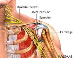 Acupuncture For Pain Relief Great diagram showing how the brachial nerves can be pinched off with anterior rotation of the neck and shoulders, creating numbness and tingling in the arms. Muscle Anatomy, Body Anatomy, Shoulder Anatomy, Shoulder Surgery, Shoulder Joint, Shoulder Injuries, Shoulder Tendonitis, Human Anatomy And Physiology, Medical Coding