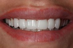 Best Teeth Whitening Kit – Pick Your Choice Veneers Teeth, Dental Veneers, Best Teeth Whitening Kit, Charcoal Teeth Whitening, Perfect Smile Teeth, Beautiful Teeth, Nail Treatment, Makeup Ideas, Skin Care
