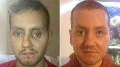 Médicos britânicos restauram o rosto de um paciente com uma impressora 3D - Disso Você Sabia ?