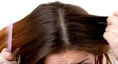 Dry scalp is really threatening if you care about your hair. It could cause dandruff, head lice, itchy scalp.read dandruff treatment dry scalp home remedies Dry Scalp Remedy, Home Remedies For Dandruff, Itchy Scalp, Dandruff Solutions, Psoriasis Remedies, Homeopathic Remedies, Natural Remedies, Oily Scalp, Hair Treatments