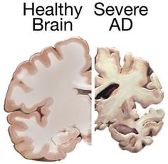 The brain-specific immune system, the microglia, can be specifically boosted to remove toxic proteins in a mouse model of Alzheimer's disease. This has great promise for treatment of this disease in humans. The image shows a health brain slice and a brain slice taken from a person with Alzheimer's disease.