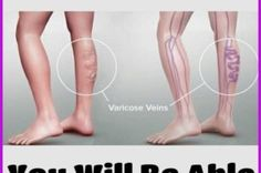 By Using Just This Ingredient, You Will Be Able to Eliminate Varicose Veins Forever! -