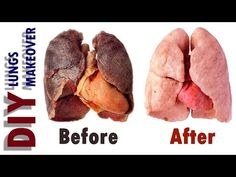 How to Detox Smokers Lungs - Lung Cleanse For Smokers Lung Cleanse Detox, Lung Cleanse Smokers, Clean Lungs, Smoking Addiction, Fat Burning Detox Drinks, Hygiene, Health And Wellbeing, Lunges, Frases