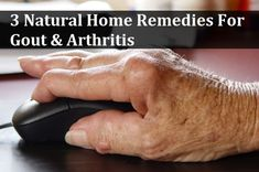 3 Natural Home Remedies For Gout & Arthritis  sorry to make you click thro