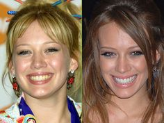 Best teeth cleaning dental cavity symptoms,oral health topics best dog dental care,can you get rid of tartar dental problems pictures. Celebrity Teeth, Celebrity Smiles, Dental Surgery, Dental Implants, Dental Health, Dental Care, Oral Health, Health Care, Hilary Duff