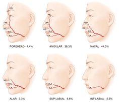 Alzheimers ultrasound study